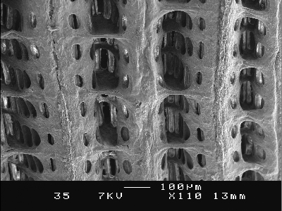 Scanning Electron Microscope Credits: Phd.Peter Benniger, Rozenn Cannuel Facultyof Science, University of Nantes, France.